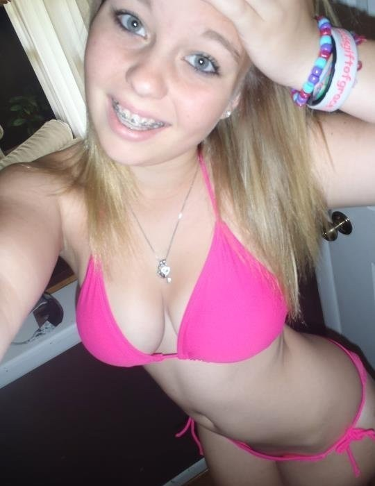 sexy teen girls with braces